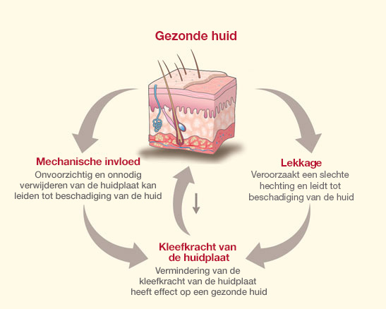 ceraplus-illustration-2_Dutch_Peristomal Skin Challenges NL_rev